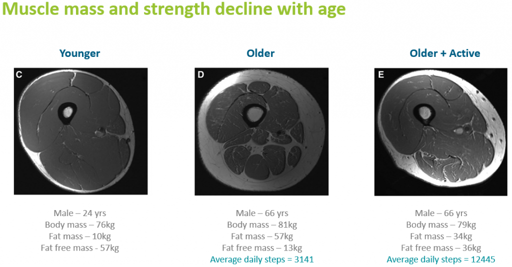 Cross-sections of muscle showing the impact physical inactivity can have on muscle mass during ageing. Taken from the webinar Active Ageing: Distinct Nutrition, Distinct Innovation?